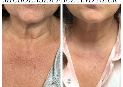 Microlaser Face and Neck